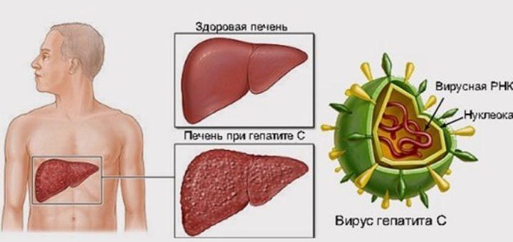 Гепатит С или ласковый убийца (1)