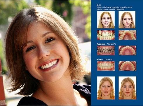 Брекеты - этапы лечения зубных аномалий брекет-системами (2)